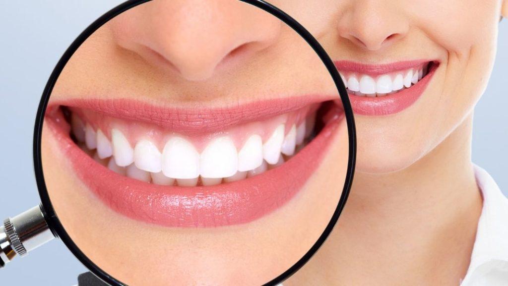 ישור שיניים